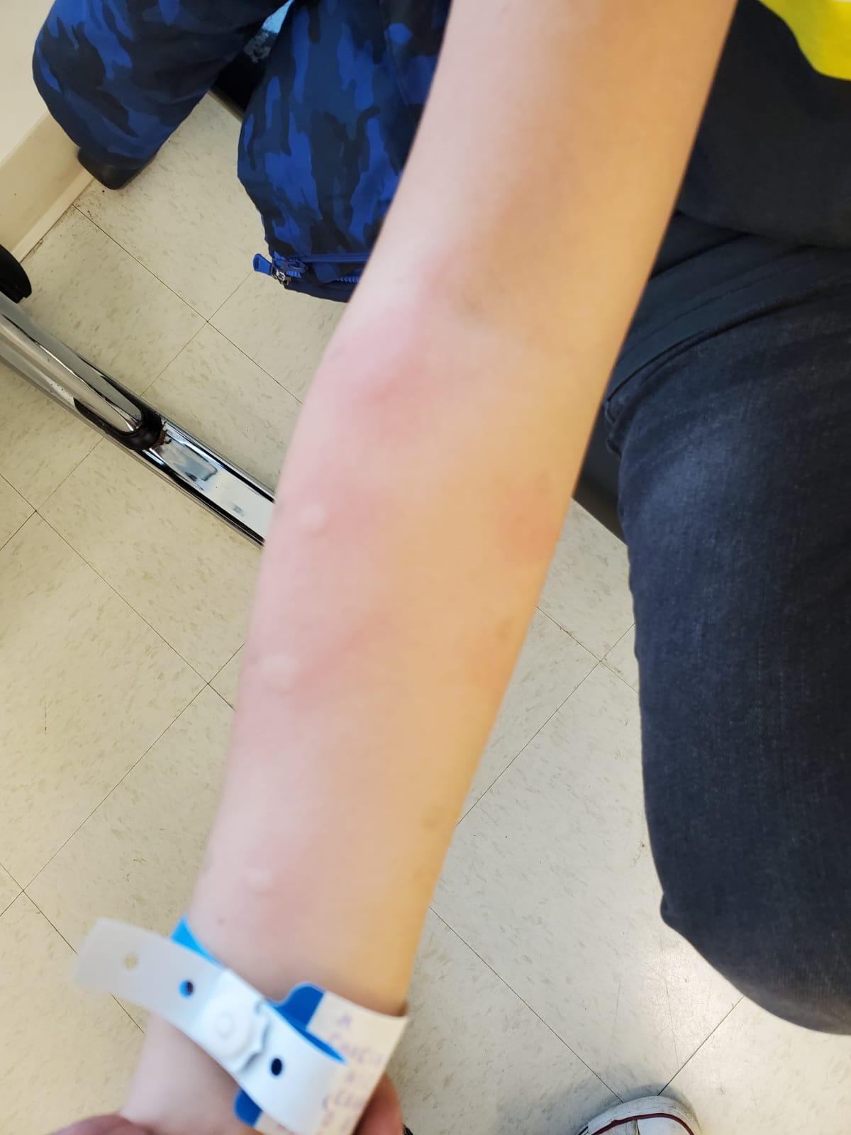 Skin test allergy